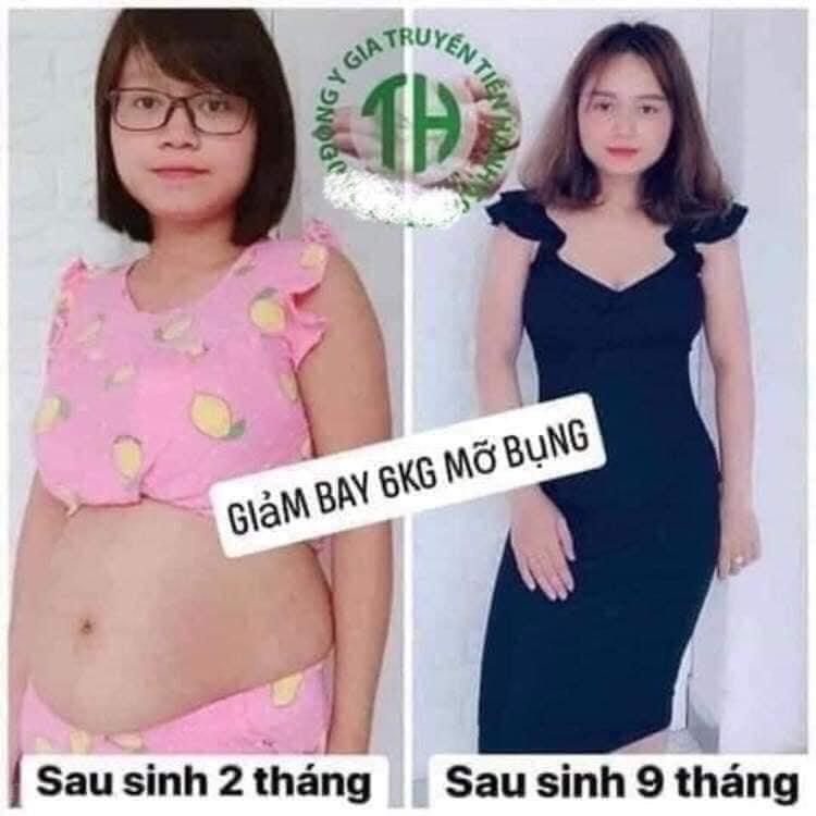 Mỡ thừa tích tụ cơ thể khiến bạn buồn phiền, mất tự tin?